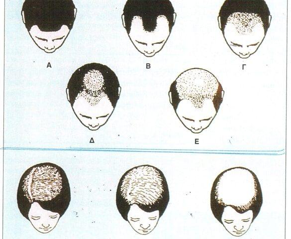 genetiko-dna-test-alopekias